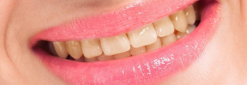 teeth whitening near me