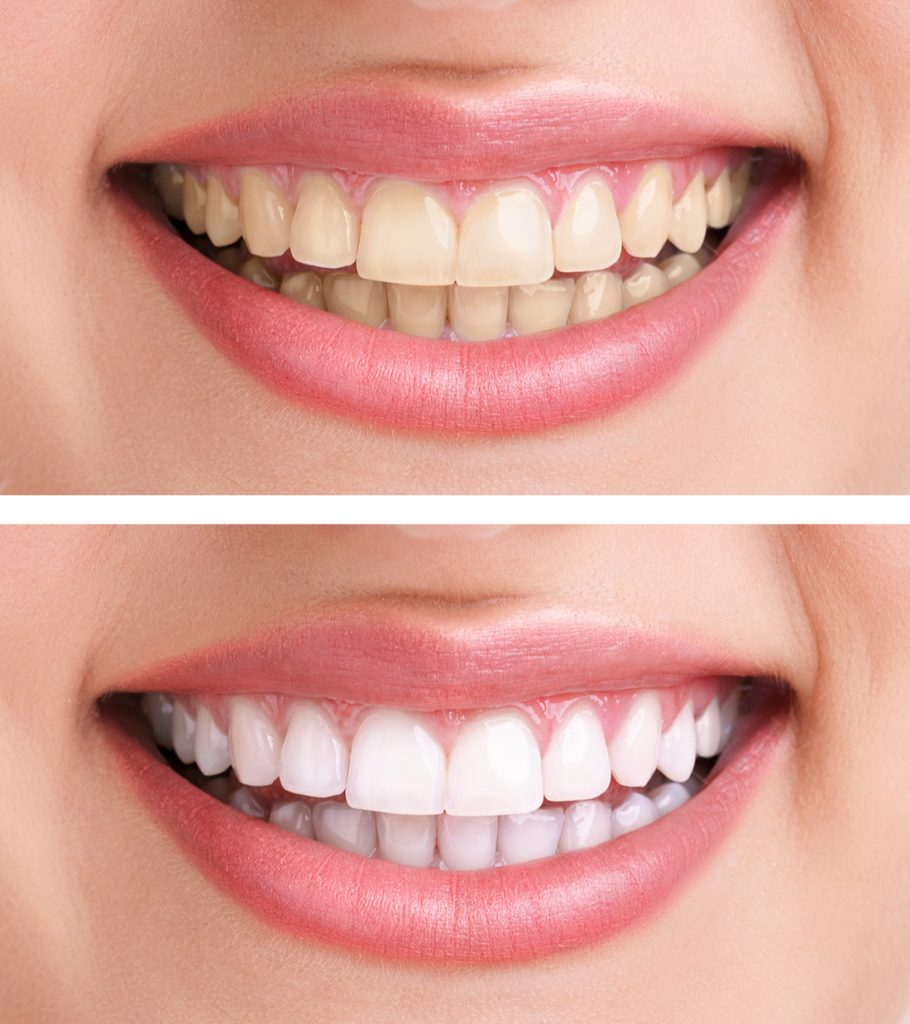 Best Teeth whitening Las Vegas